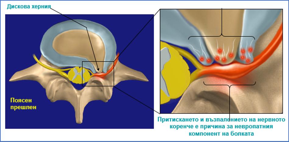 дискова херния келтикан форте болка кръст
